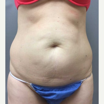 46 year old woman treated with Mini Tummy Tuck, liposuction to circumferential trunk and BBL before 1851615