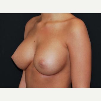 18-24 year old woman treated with Breast Implants after 3650797