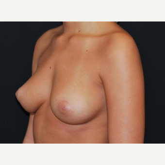 18-24 year old woman treated with Breast Implants before 3650797