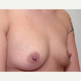 Breast Augmentation before 3108837