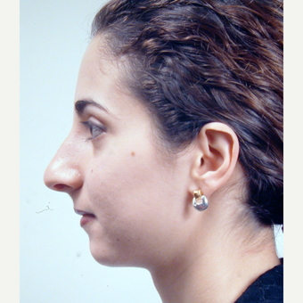 18-24 year old woman treated with Rhinoplasty before 3686983