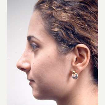 18-24 year old woman treated with Rhinoplasty after 3686983
