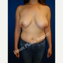 25-34 year old woman treated with Breast Reduction before 3665796