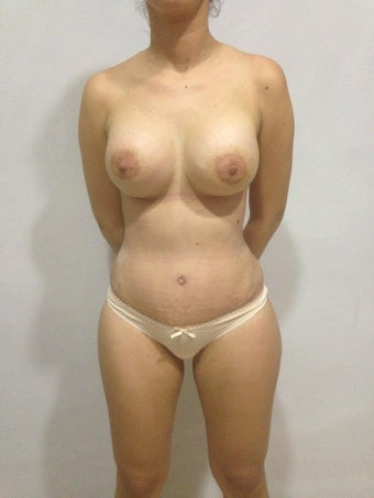 Mommy make over Tummy tuck, Liposculpture waist and Flanks with Breas augmentation