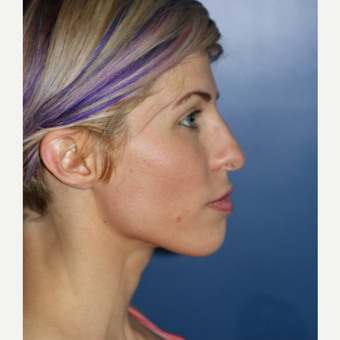 25-34 year old woman treated with Rhinoplasty before 3104452