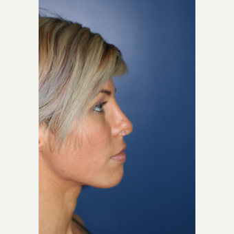 25-34 year old woman treated with Rhinoplasty after 3104452
