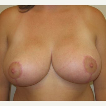 22 year old woman treated with Breast Reduction