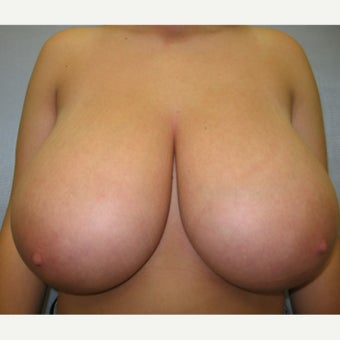 22 year old woman treated with Breast Reduction before 1674660
