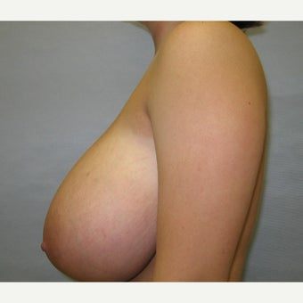 22 year old woman treated with Breast Reduction 1674660