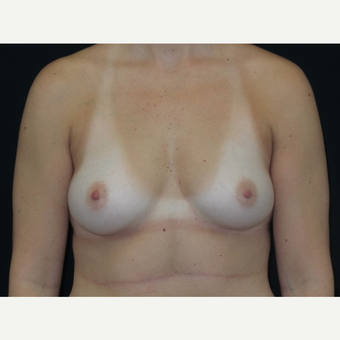 25-34 year old woman treated with Breast Implants before 3652063
