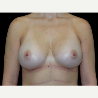 25-34 year old woman treated with Breast Implants after 3652063