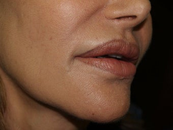 Lip Repair/Silicone Removal after 398105