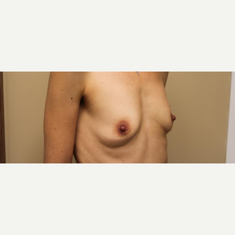 Breast Augmentation with Armpit Incision before 3610117