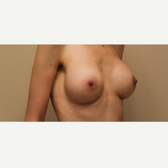 Breast Augmentation with Armpit Incision after 3610117