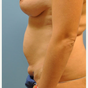 33 year old woman treated with Tummy Tuck before 3583974