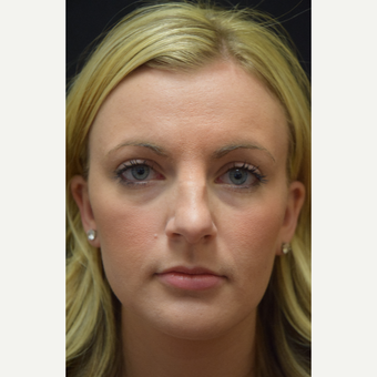 25-34 year old woman treated with Rhinoplasty before 3026696