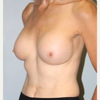 45-54 year old woman treated with Breast Augmentation after 2526668