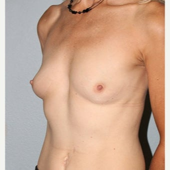 45-54 year old woman treated with Breast Augmentation before 2526668