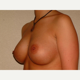 26 y/o Transaxillary Submuscular Breast Augmentation after 3066414