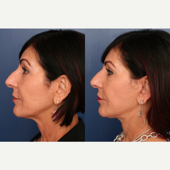 45-54 year old woman treated with Lower Face Lift after 3705807