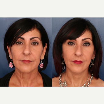 45-54 year old woman treated with Lower Face Lift before 3705807