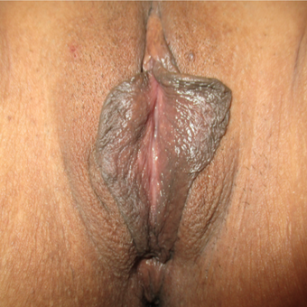 35-44 year old woman treated with Labiaplasty before 2855368