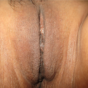 35-44 year old woman treated with Labiaplasty after 2855368