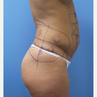 35-44 year old woman treated with Smart Lipo before 3097421