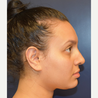 18-24 year old woman treated with Rhinoplasty after 2979660