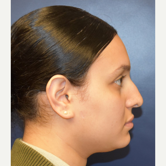 18-24 year old woman treated with Rhinoplasty before 2979660