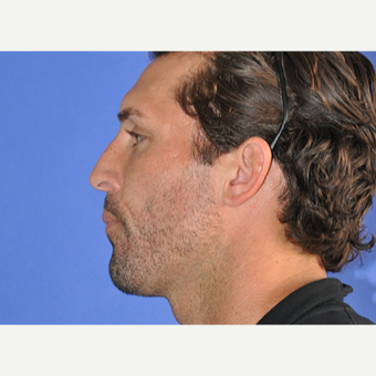 35-44 year old man treated with Rhinoplasty before 3240044