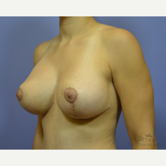 25-34 year old woman treated with Breast Implant Revision after 3415853