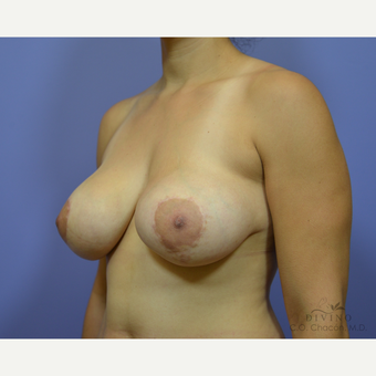 25-34 year old woman treated with Breast Implant Revision before 3415853