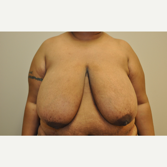 35-44 year old woman treated with Breast Reduction before 3103140