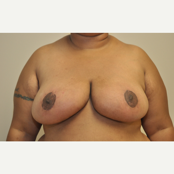 35-44 year old woman treated with Breast Reduction after 3103140