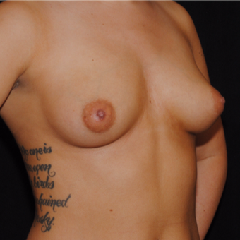18-24 year old woman treated with Breast Implants before 3692206
