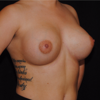 18-24 year old woman treated with Breast Implants after 3692206