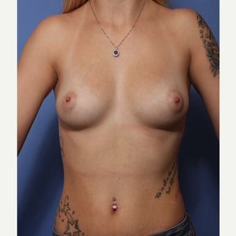 18-24 year old woman treated with Breast Augmentation before 3505960
