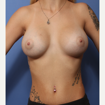 18-24 year old woman treated with Breast Augmentation after 3505960