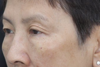 Undereye rejuvenation using Belotero with cannula after 1450936
