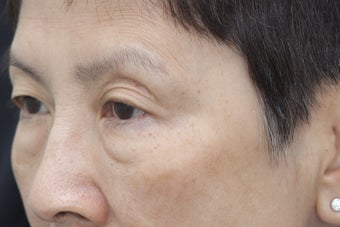 Undereye rejuvenation using Belotero with cannula before 1450936