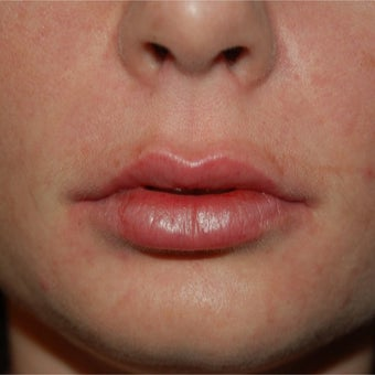 35-44 year old woman treated with Lip Augmentation after 1829391