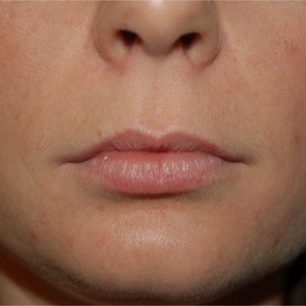 35-44 year old woman treated with Lip Augmentation before 1829391