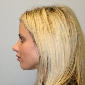 35-44 year old woman treated with Rhinoplasty