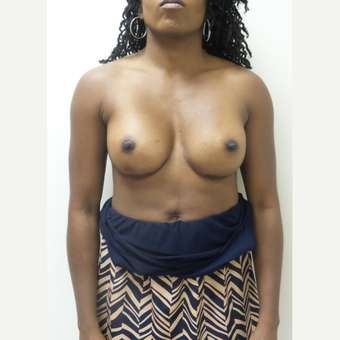 35-44 year old woman treated with Breast Implants after 3850354