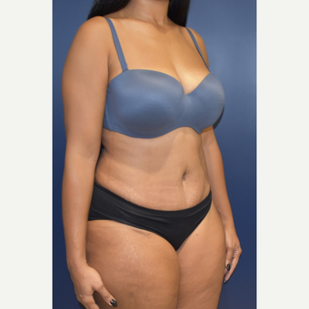 25-34 year old woman treated with Tummy Tuck after 3844752