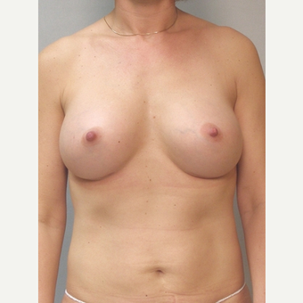 Breast Implants after 3241559