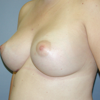 29 year old woman treated with Breast Augmentation after 3042557