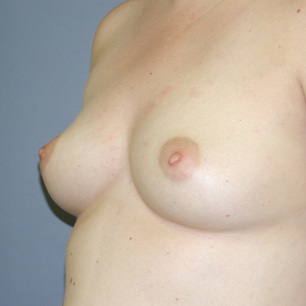29 year old woman treated with Breast Augmentation before 3042557