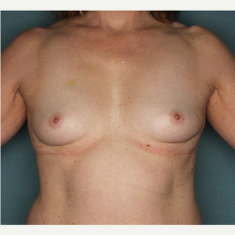 45-54 year old woman treated with Breast Augmentation before 3520756